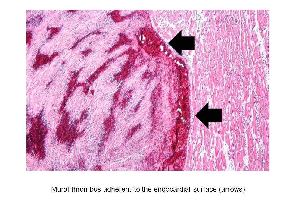 Mural thrombus adherent to the endocardial surface (arrows)