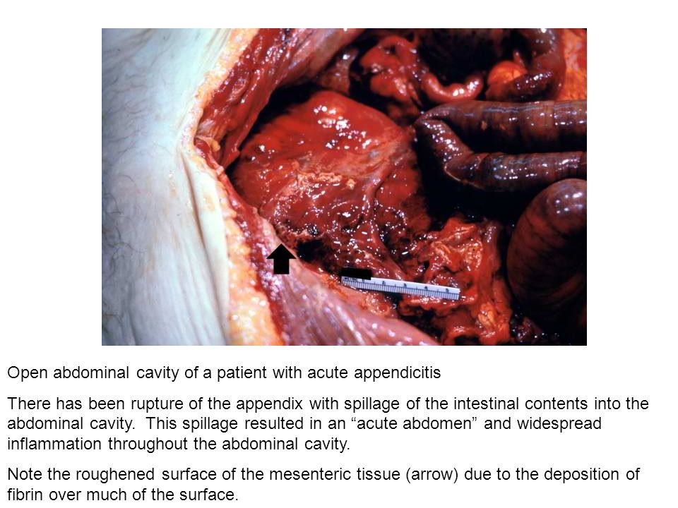 Open abdominal cavity of a patient with acute appendicitis There has been rupture of the appendix with spillage of the intestinal contents into the ab