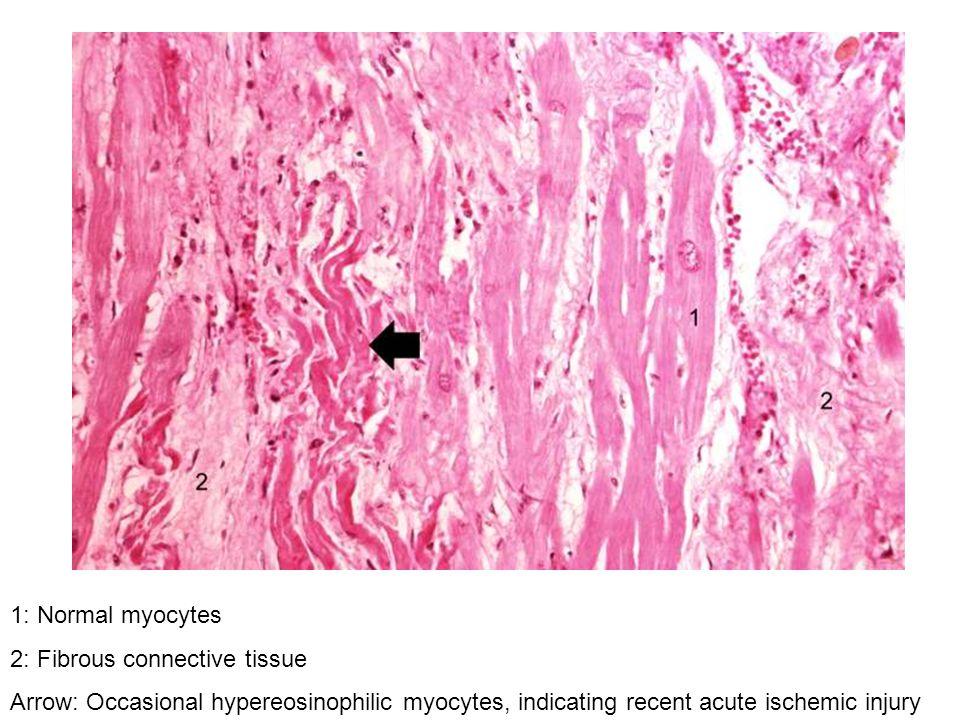1: Normal myocytes 2: Fibrous connective tissue Arrow: Occasional hypereosinophilic myocytes, indicating recent acute ischemic injury