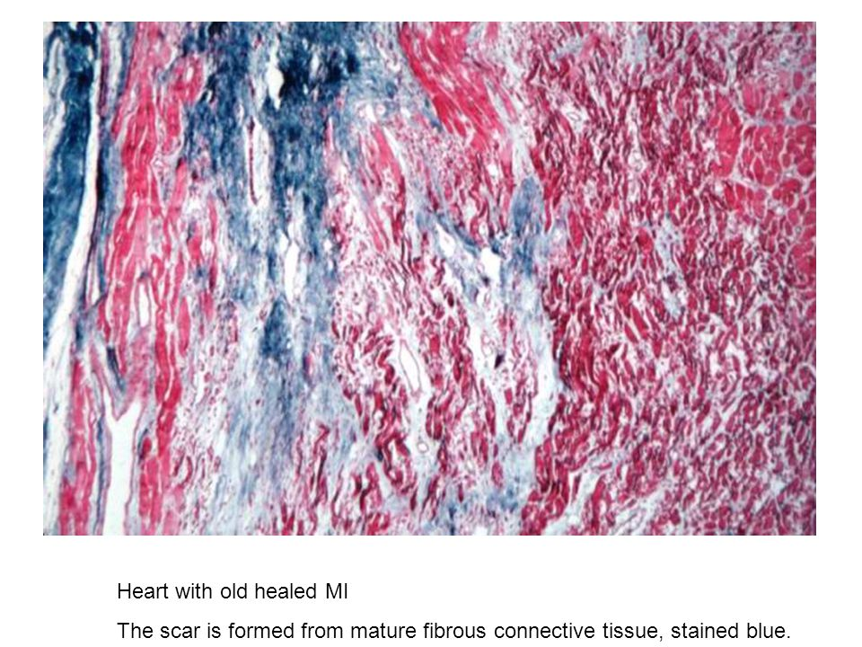 Heart with old healed MI The scar is formed from mature fibrous connective tissue, stained blue.