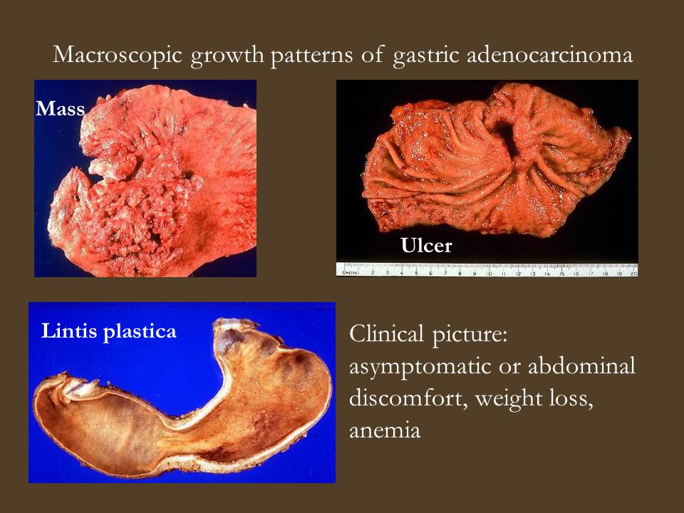 Macroscopic growth patterns of gastric adenocarcinoma Mass Ulcer Lintis plastica Clinical picture: asymptomatic or abdominal discomfort, weight loss, anemia