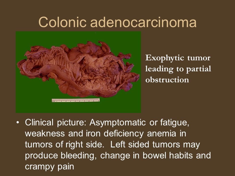 Colonic adenocarcinoma Clinical picture: Asymptomatic or fatigue, weakness and iron deficiency anemia in tumors of right side.