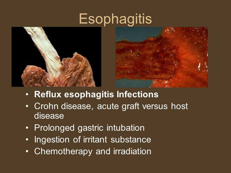 Esophagitis Reflux esophagitis Infections Crohn disease, acute graft versus host disease Prolonged gastric intubation Ingestion of irritant substance Chemotherapy and irradiation