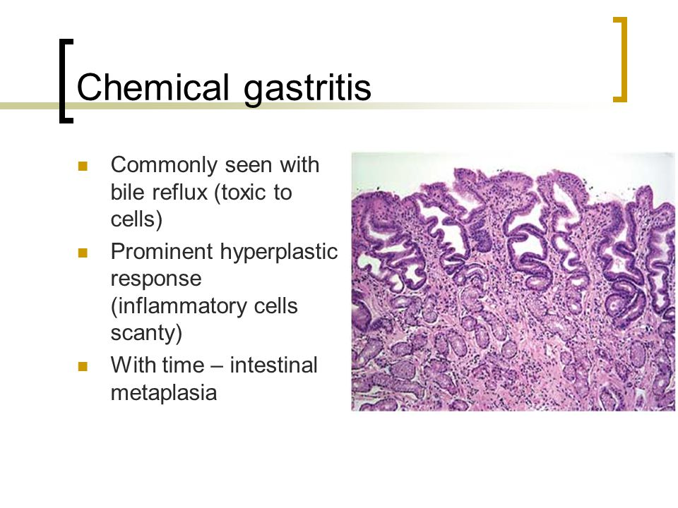 Chemical gastritis Commonly seen with bile reflux (toxic to cells) Prominent hyperplastic response (inflammatory cells scanty) With time – intestinal