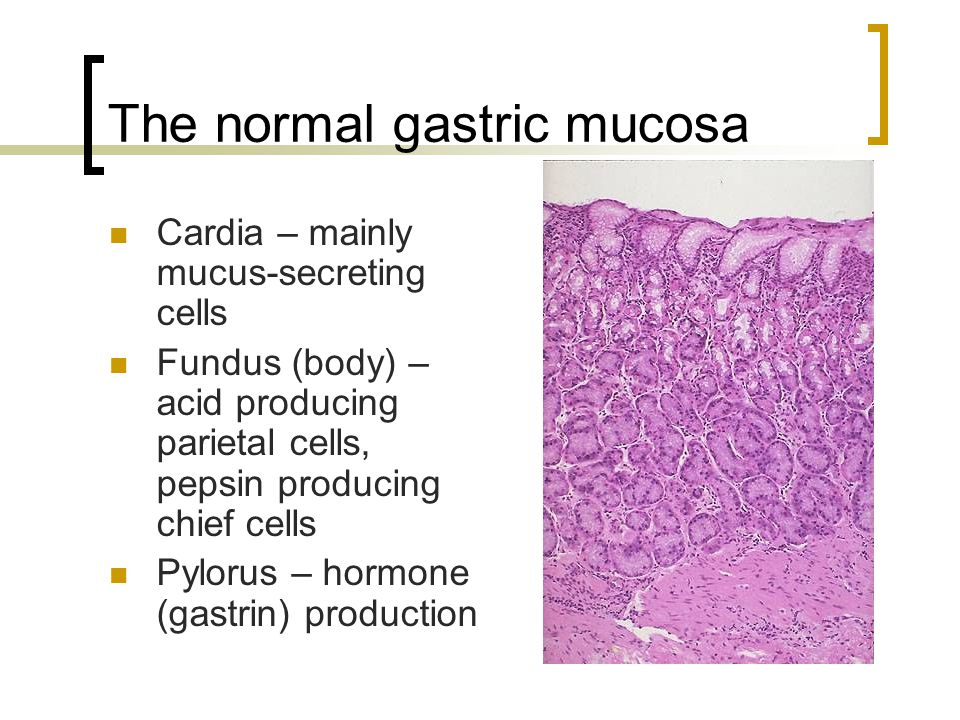 The normal gastric mucosa Cardia – mainly mucus-secreting cells Fundus (body) – acid producing parietal cells, pepsin producing chief cells Pylorus –