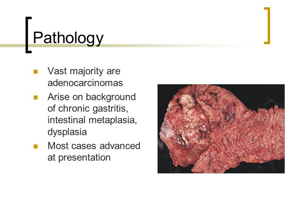 Pathology Vast majority are adenocarcinomas Arise on background of chronic gastritis, intestinal metaplasia, dysplasia Most cases advanced at presentation