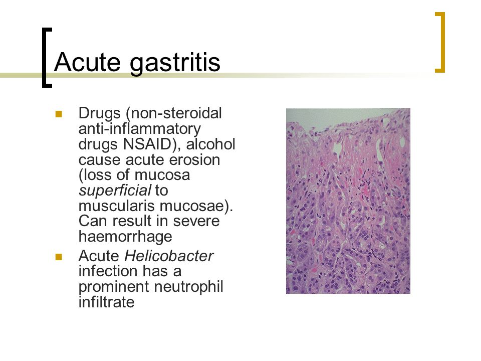 Acute gastritis Drugs (non-steroidal anti-inflammatory drugs NSAID), alcohol cause acute erosion (loss of mucosa superficial to muscularis mucosae). C