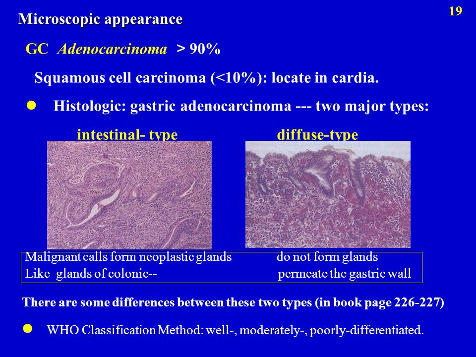 GC Adenocarcinoma > 90% Squamous cell carcinoma (<10%): locate in cardia. Histologic: gastric adenocarcinoma --- two major types: intestinal- type dif