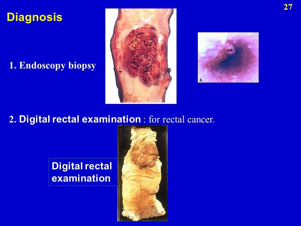 1. Endoscopy biopsy 2. Digital rectal examination : for rectal cancer. Digital rectal examination Diagnosis 27