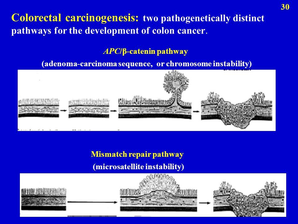 Colorectal carcinogenesis: two pathogenetically distinct pathways for the development of colon cancer. APC/β-catenin pathway (adenoma-carcinoma sequen