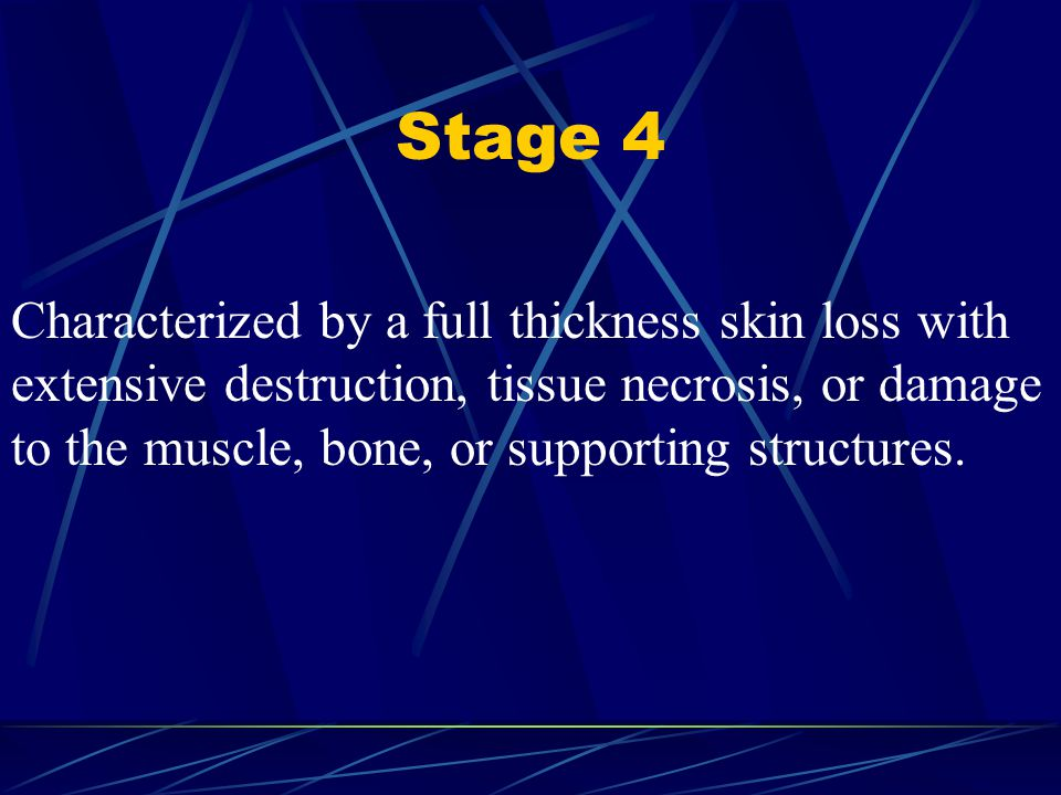 Stage 4 Characterized by a full thickness skin loss with extensive destruction, tissue necrosis, or damage to the muscle, bone, or supporting structur