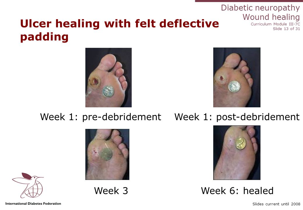 Diabetic neuropathy Wound healing Curriculum Module III-7C Slide 13 of 31 Slides current until 2008 Ulcer healing with felt deflective padding Week 1: pre-debridement Week 1: post-debridement Week 3 Week 6: healed