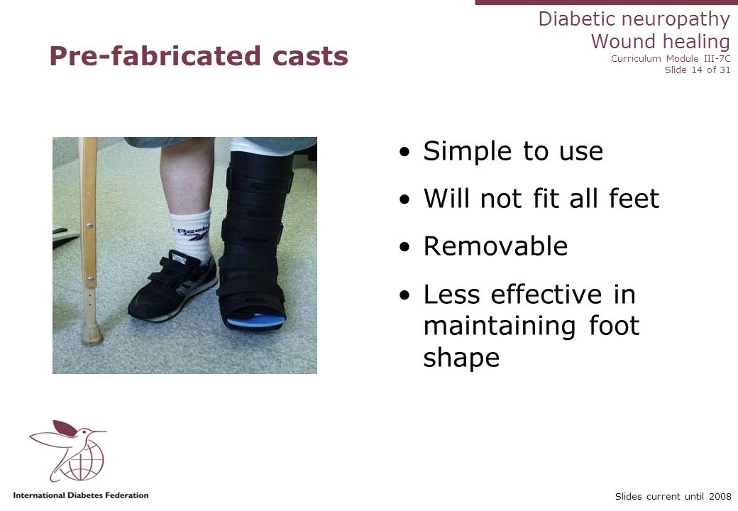 Diabetic neuropathy Wound healing Curriculum Module III-7C Slide 14 of 31 Slides current until 2008 Pre-fabricated casts Simple to use Will not fit all feet Removable Less effective in maintaining foot shape
