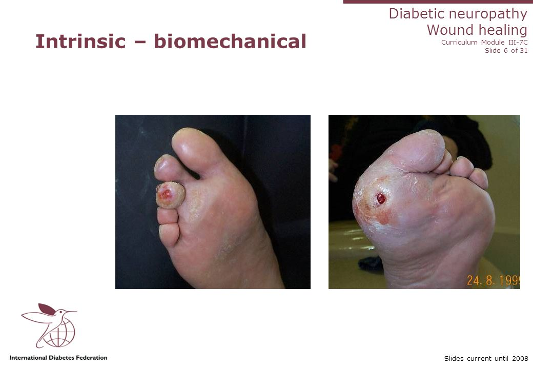 Diabetic neuropathy Wound healing Curriculum Module III-7C Slide 17 of 31 Slides current until 2008 Treatment goals Control infection Improve blood supply Optimize wound healing environment Protect wound from trauma