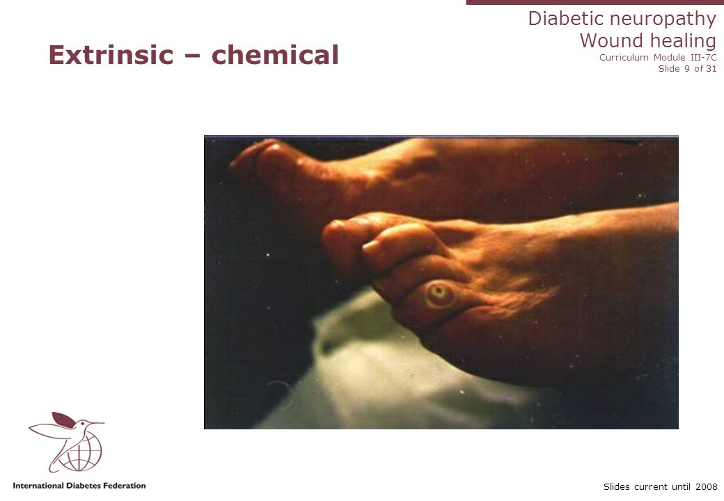 Diabetic neuropathy Wound healing Curriculum Module III-7C Slide 20 of 31 Slides current until 2008 Practice tips: ischaemic ulcers Gels contraindicated in the presence of ischaemia Do not debride Do not use compression Keep foot dry in shower and wash separately Be very careful with tapes to prevent skin tears