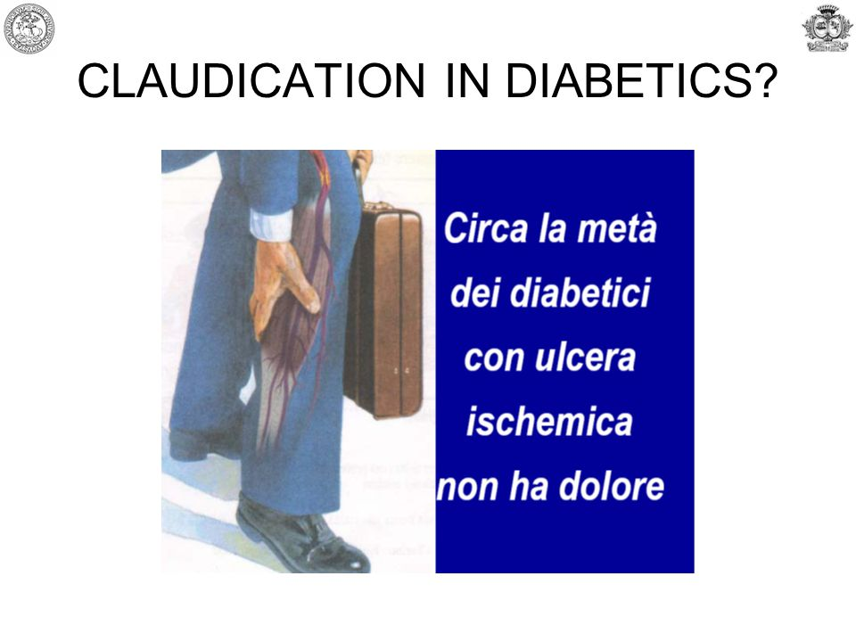 CLAUDICATION IN DIABETICS