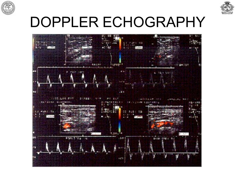 DOPPLER ECHOGRAPHY