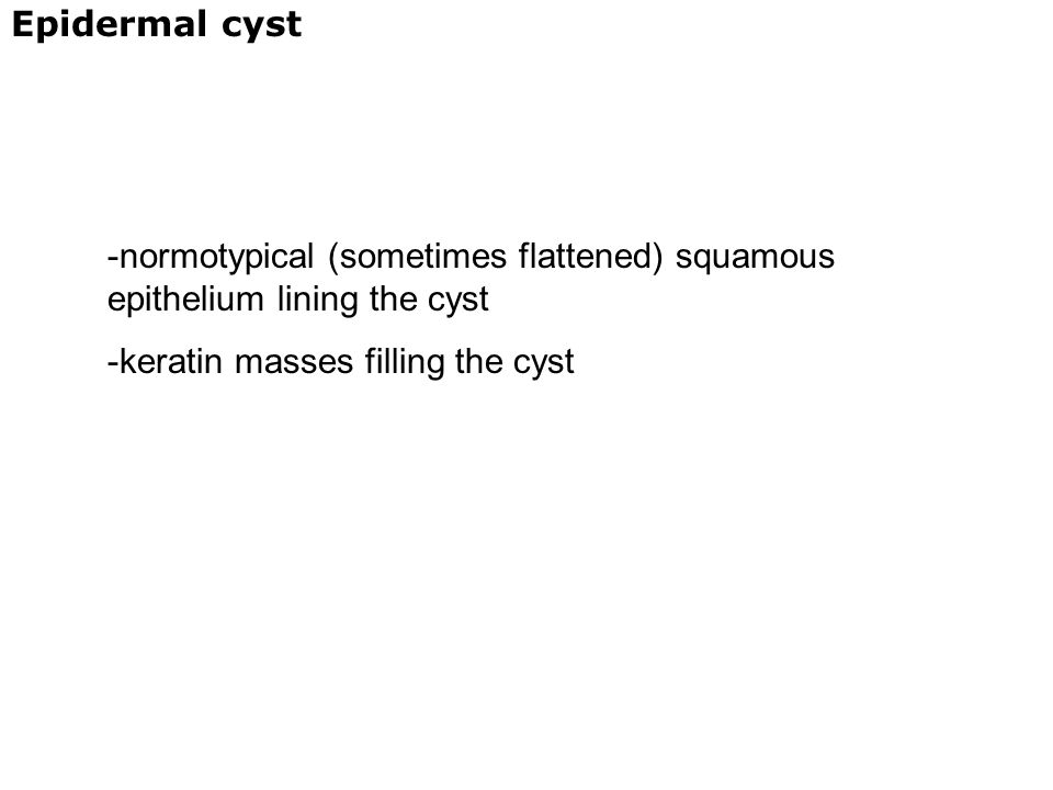Epidermal cyst -normotypical (sometimes flattened) squamous epithelium lining the cyst -keratin masses filling the cyst