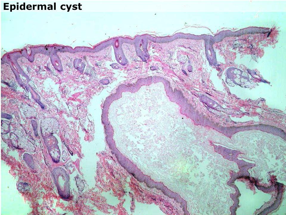 Epidermal cyst