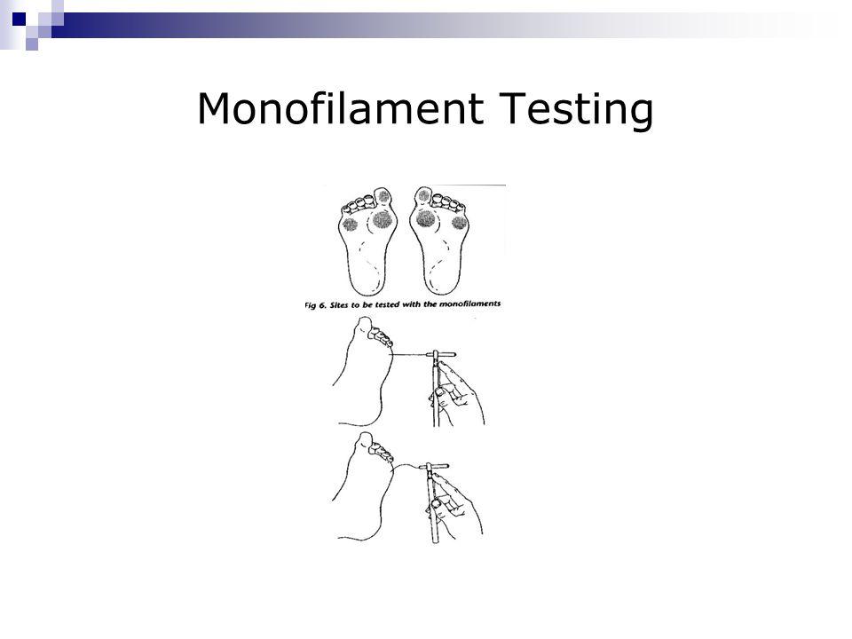 Monofilament Testing
