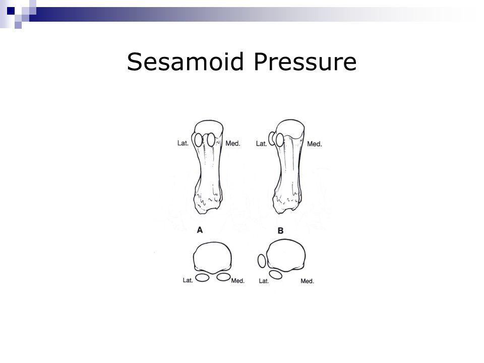 Sesamoid Pressure