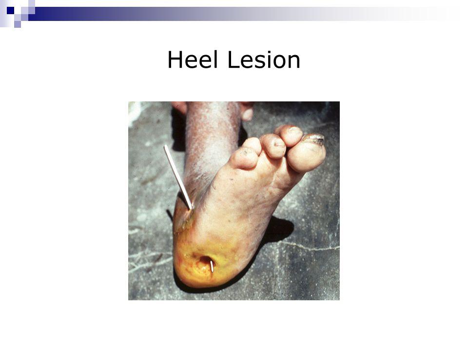 Heel Lesion