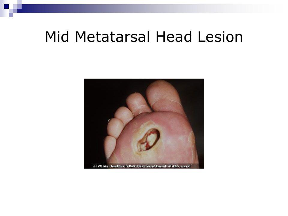 Mid Metatarsal Head Lesion