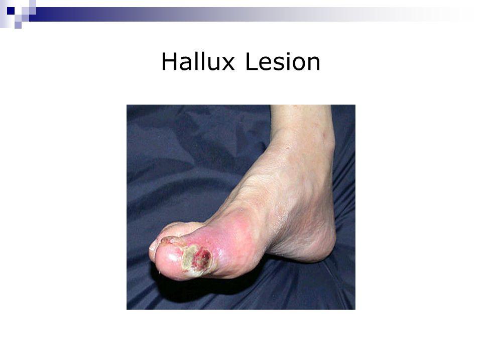 Hallux Lesion