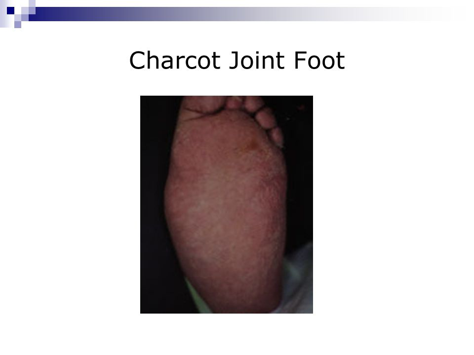 Charcot Joint Foot