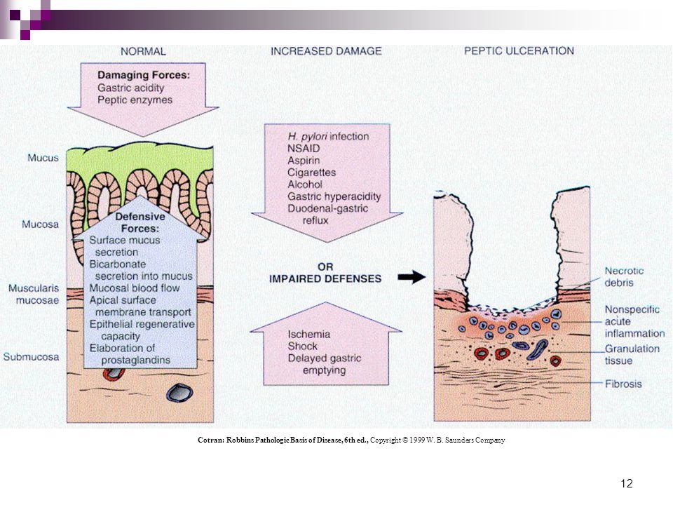 13 Protective Mechanisms Within the Gut Wall