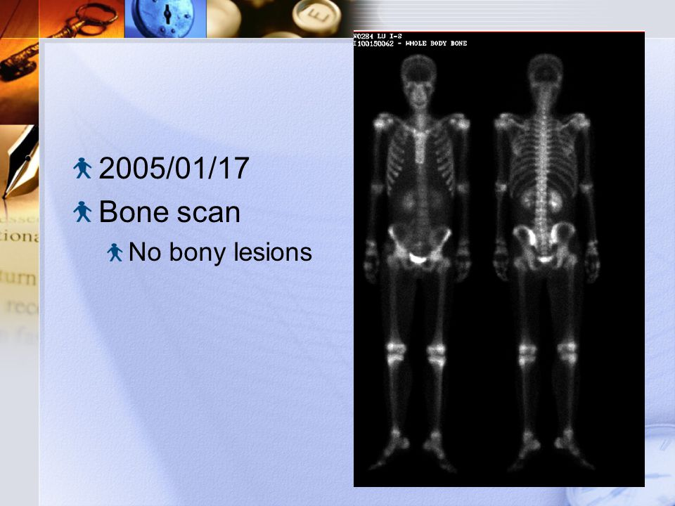 2005/01/17 Bone scan No bony lesions