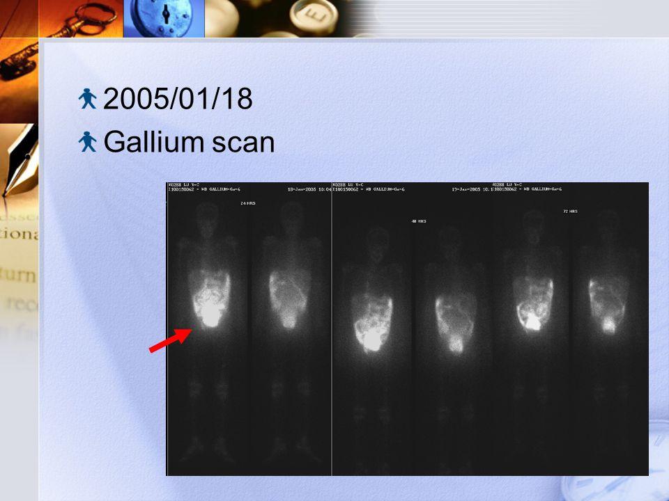 2005/01/18 Gallium scan
