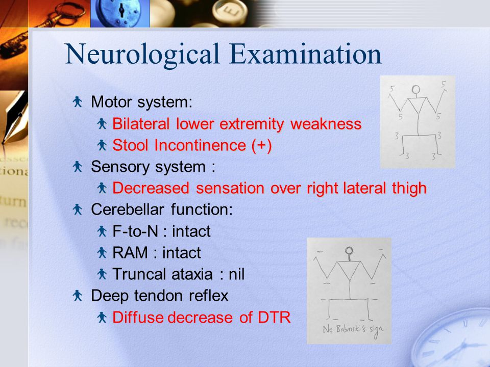 Neurological Examination Motor system: Bilateral lower extremity weakness Stool Incontinence (+) Sensory system : Decreased sensation over right lateral thigh Cerebellar function: F-to-N : intact RAM : intact Truncal ataxia : nil Deep tendon reflex Diffuse decrease of DTR