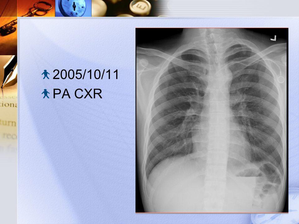 2005/10/11 PA CXR