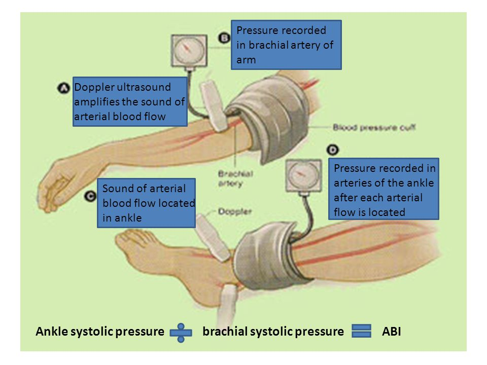 Doppler ultrasound amplifies the sound of arterial blood flow Pressure recorded in brachial artery of arm Sound of arterial blood flow located in ankle Pressure recorded in arteries of the ankle after each arterial flow is located Ankle systolic pressure brachial systolic pressure ABI