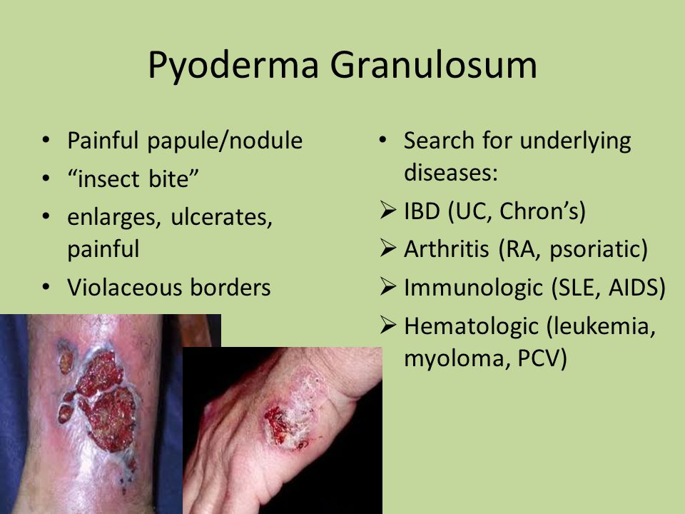 "Pyoderma Granulosum Painful papule/nodule ""insect bite"" enlarges, ulcerates, painful Violaceous borders Search for underlying diseases:  IBD (UC, Chr"