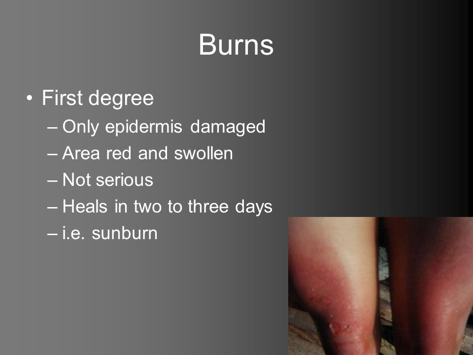 Burns First degree –Only epidermis damaged –Area red and swollen –Not serious –Heals in two to three days –i.e. sunburn