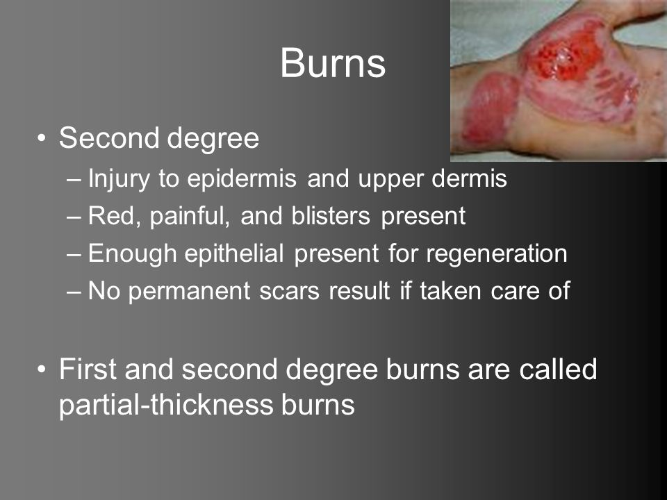 Burns Second degree –Injury to epidermis and upper dermis –Red, painful, and blisters present –Enough epithelial present for regeneration –No permanen