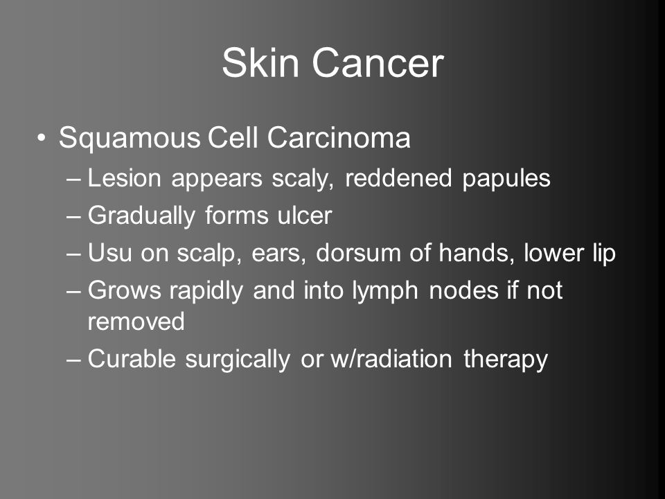 Skin Cancer Squamous Cell Carcinoma –Lesion appears scaly, reddened papules –Gradually forms ulcer –Usu on scalp, ears, dorsum of hands, lower lip –Gr