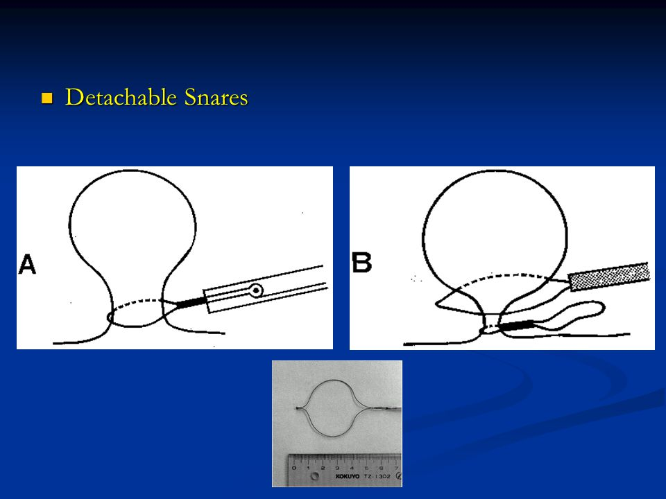 Detachable Snares Detachable Snares