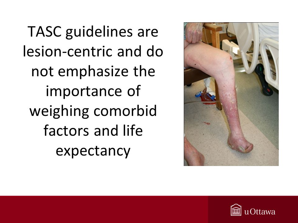 TASC guidelines are lesion-centric and do not emphasize the importance of weighing comorbid factors and life expectancy
