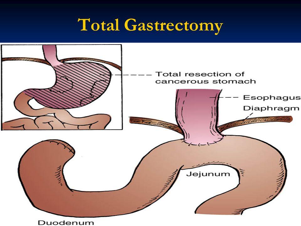 Total Gastrectomy