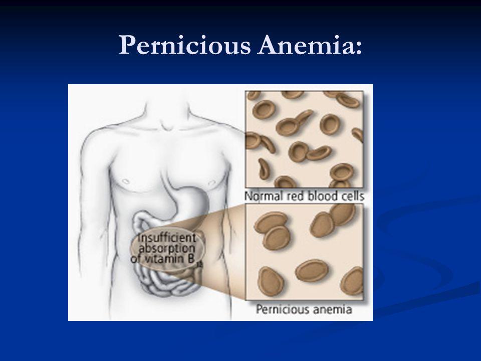 Pernicious Anemia: