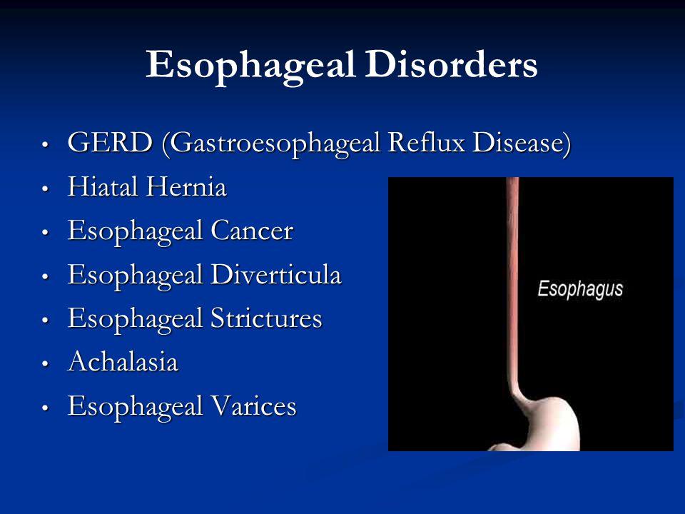 Esophageal Disorders GERD (Gastroesophageal Reflux Disease) GERD (Gastroesophageal Reflux Disease) Hiatal Hernia Hiatal Hernia Esophageal Cancer Esoph