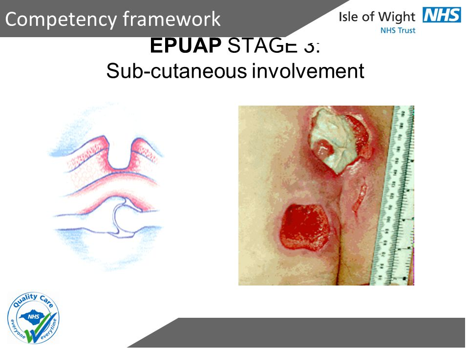 EPUAP STAGE 3: Sub-cutaneous involvement Competency framework