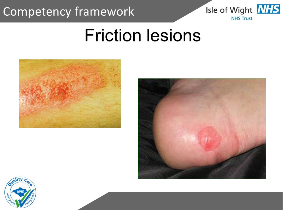 Friction lesions Competency framework