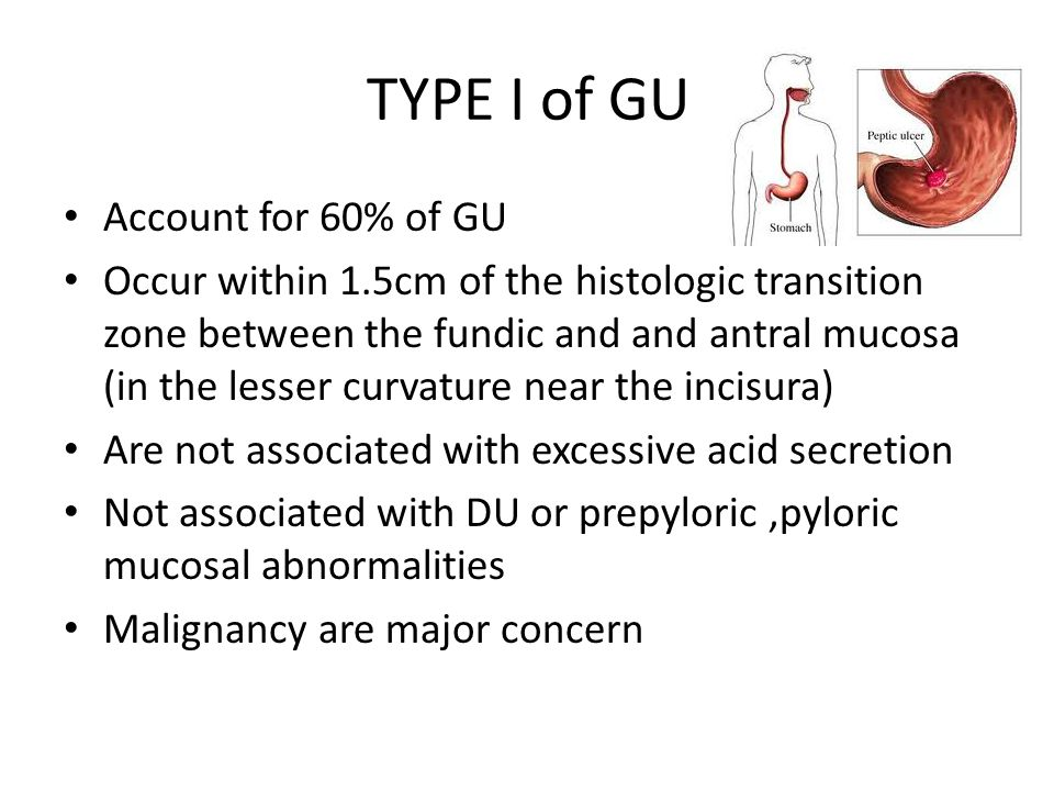 TYPE I of GU Account for 60% of GU Occur within 1.5cm of the histologic transition zone between the fundic and and antral mucosa (in the lesser curvature near the incisura) Are not associated with excessive acid secretion Not associated with DU or prepyloric,pyloric mucosal abnormalities Malignancy are major concern