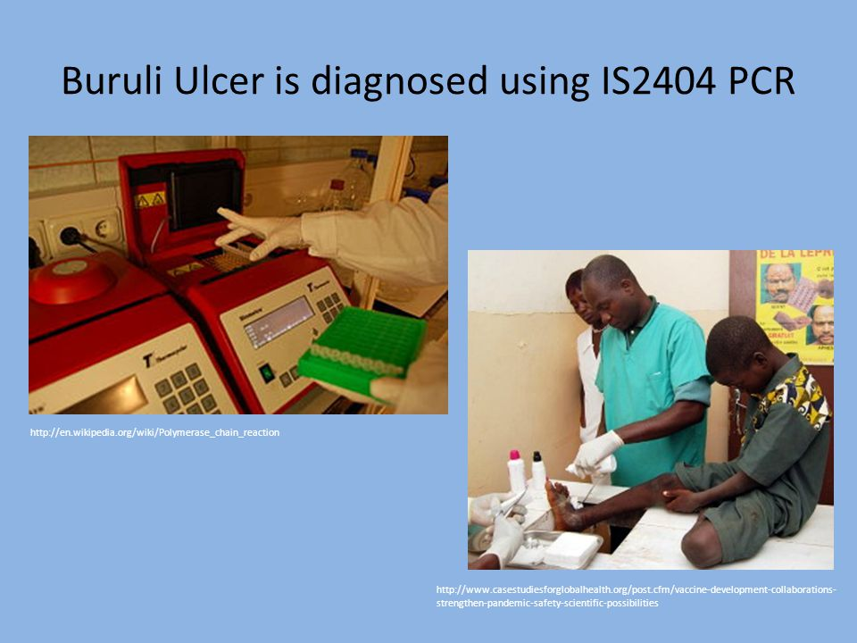 Buruli Ulcer is diagnosed using IS2404 PCR http://www.casestudiesforglobalhealth.org/post.cfm/vaccine-development-collaborations- strengthen-pandemic-safety-scientific-possibilities http://en.wikipedia.org/wiki/Polymerase_chain_reaction