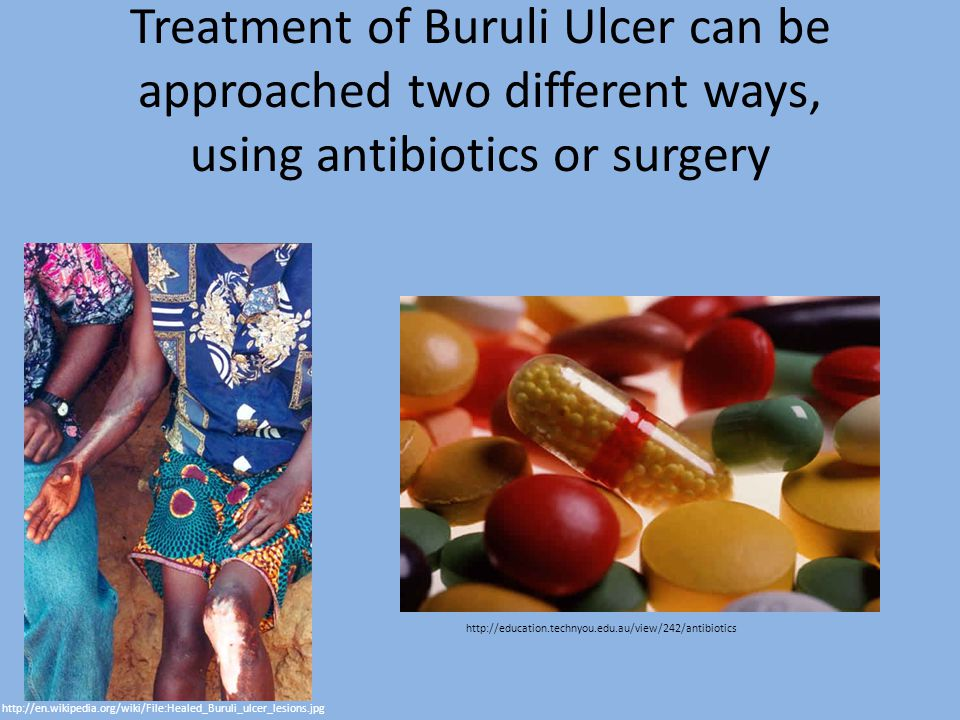 Treatment of Buruli Ulcer can be approached two different ways, using antibiotics or surgery http://en.wikipedia.org/wiki/File:Healed_Buruli_ulcer_lesions.jpg http://education.technyou.edu.au/view/242/antibiotics