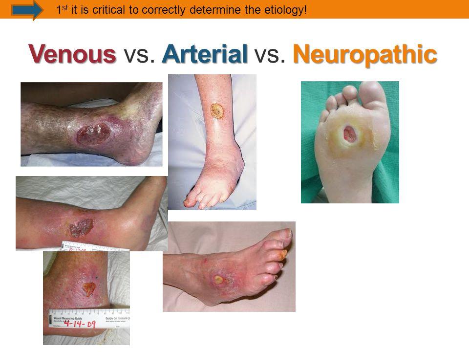 VenousArterialNeuropathic Venous vs.Arterial vs.